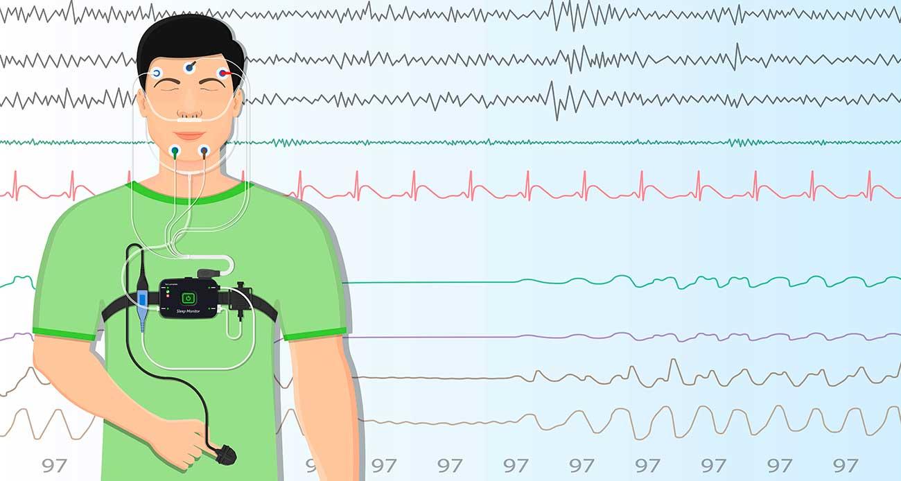 polisomnografia prueba sueno